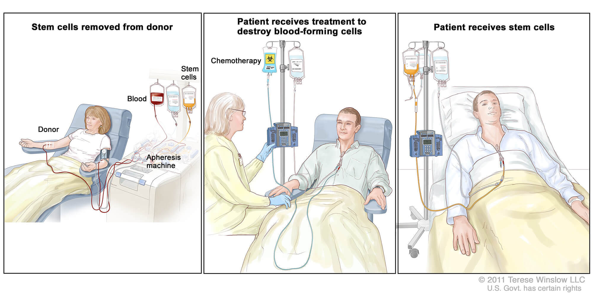 bone-marrow-transplant-procedure