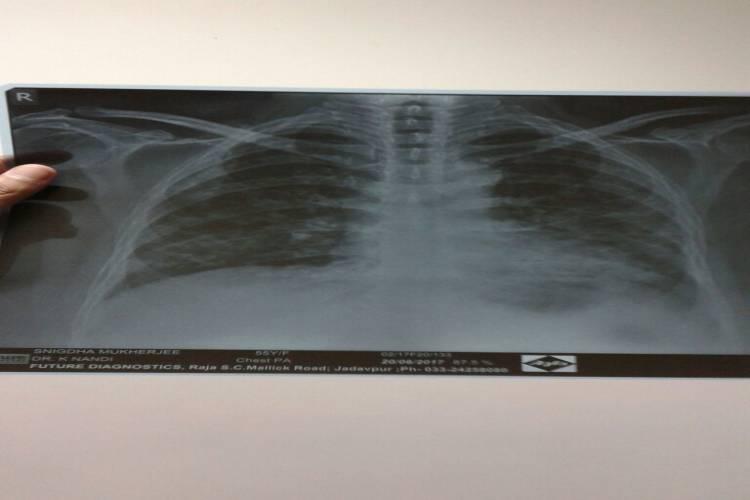 My mother Snigdha Mukherjee having Interstitial Lung Disease - story -19