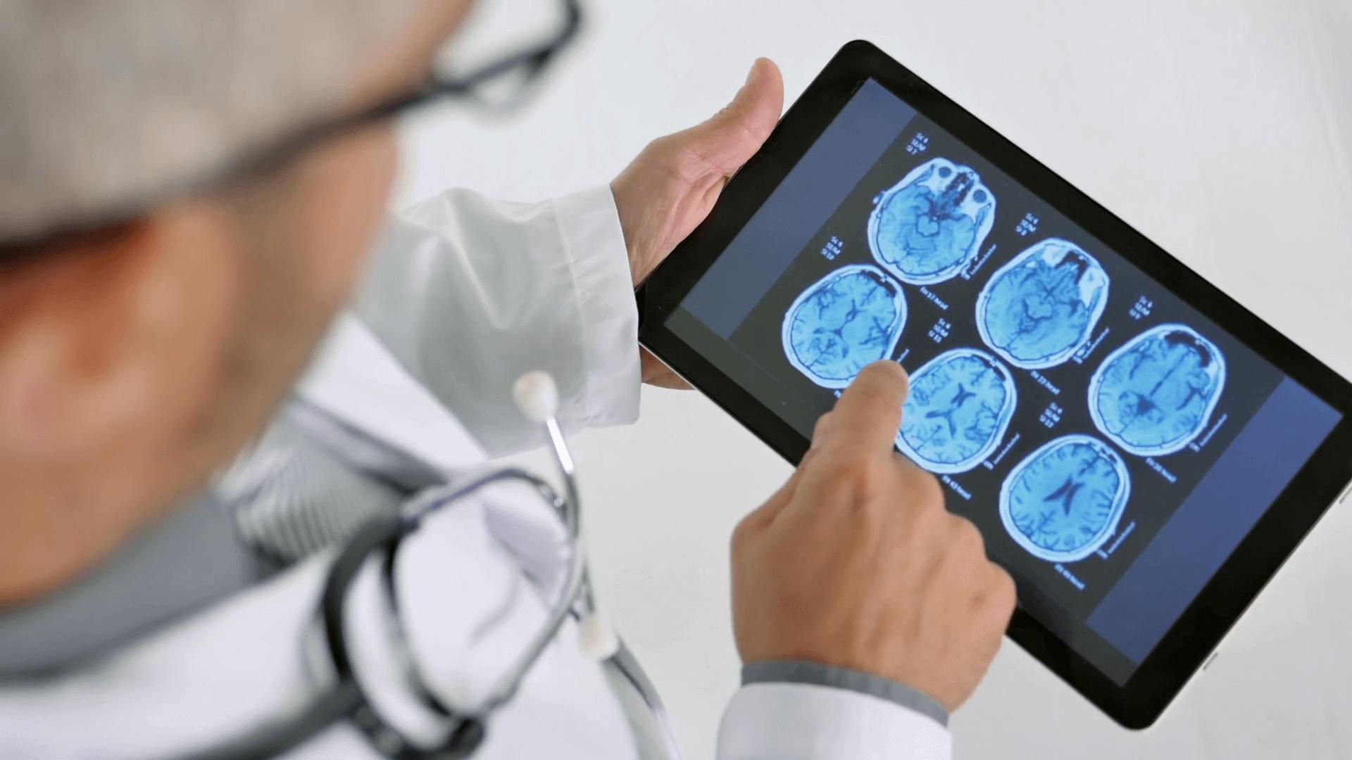 brain-hemorrhage-diagnosis