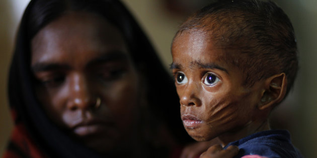 You can save 100 children from malnutrition. Act now. - story -1