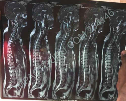 Help Venkatesh Vaddempudi For Spinal Cord Surgery - story -1