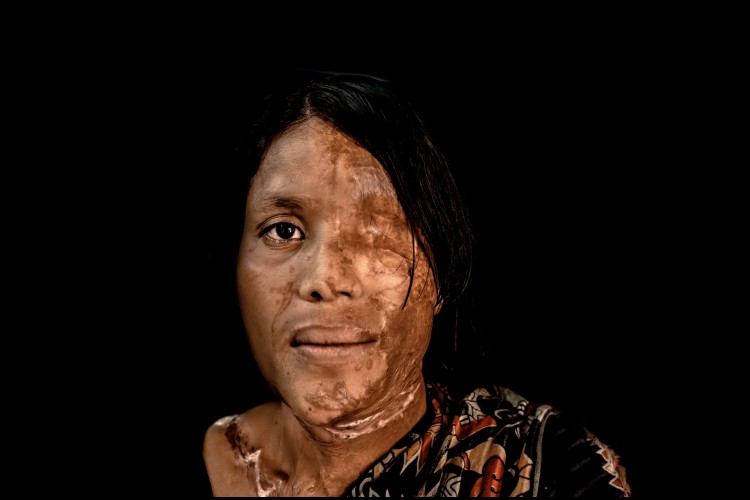 Impact Guru - Help ACID ATTACK victims reclaim their lives
