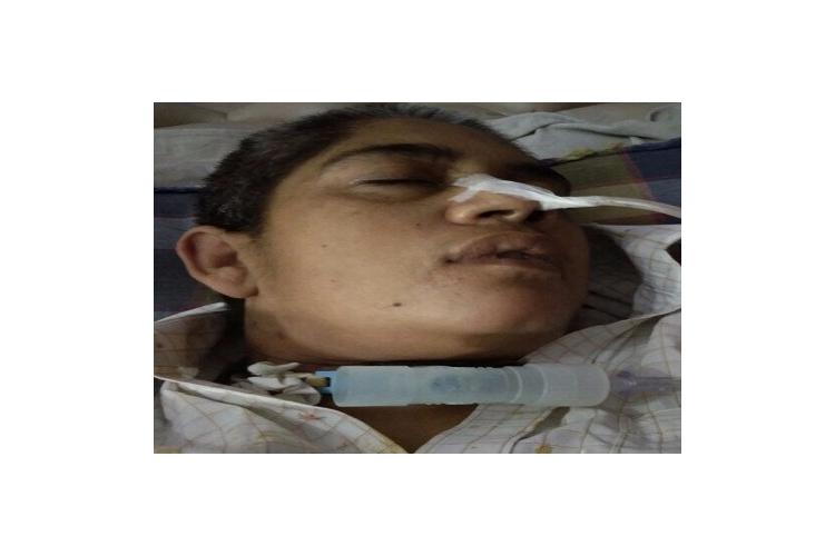 Help my sister for brain haemorrhage treatment