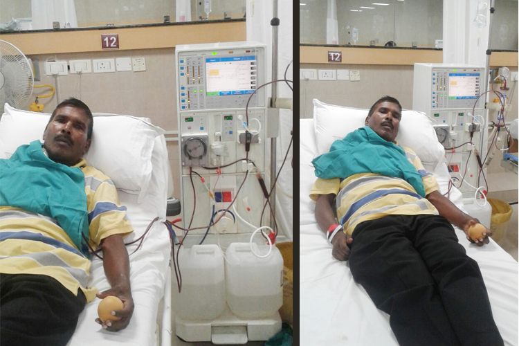 Save one Life, need help for Kidney Transplantation