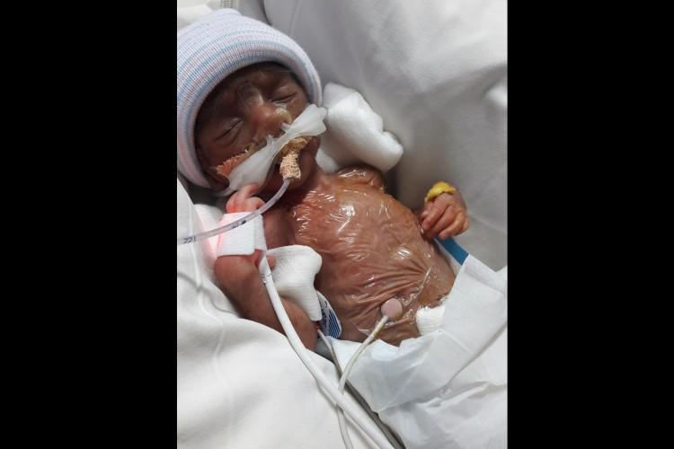 Baby Miraclyn's treatment