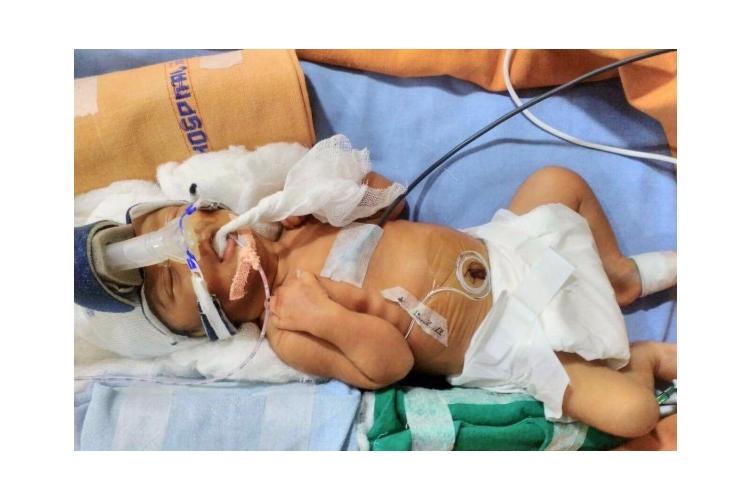 Need help for Arun' s Pre-Term born Baby