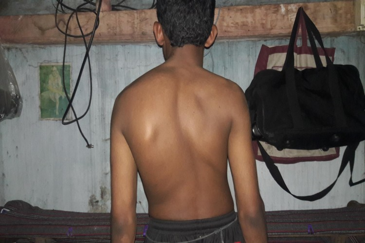 Naveen: scoliosis sugery