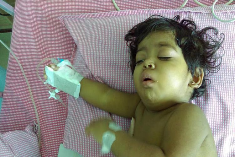 Liver Transplant for 16-month old Baby Akshitha