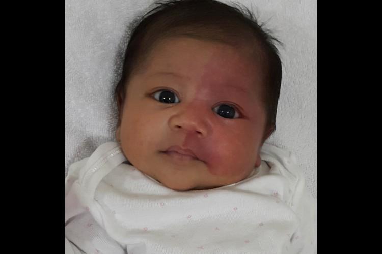 Help Fund for  Baby Gabriela Sturge Weber Treatment