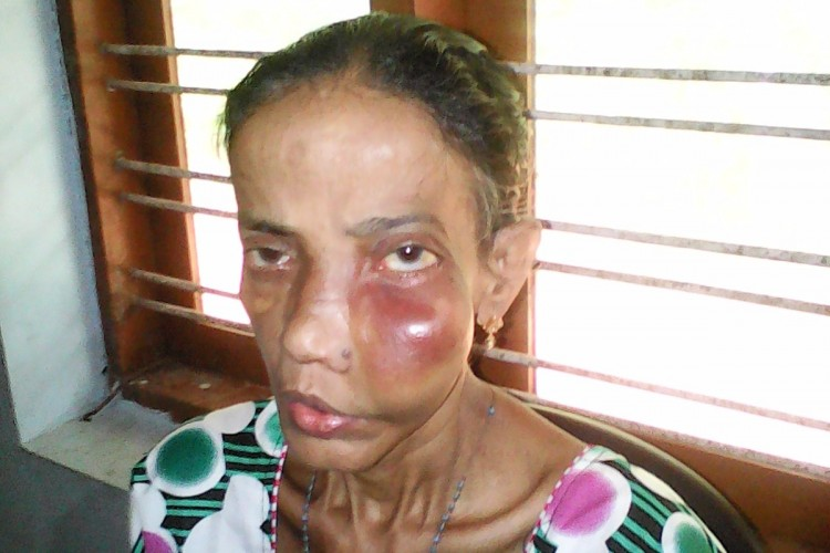 Save My Mother from Sinus Tumor