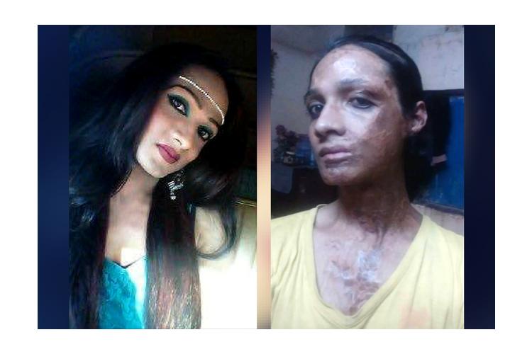 Help Transgender Acid and Gang Rape Survivor Sonia