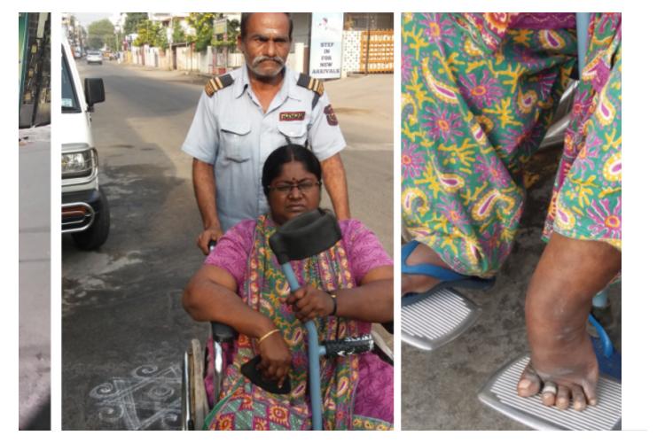 Help Disable Leg Operation