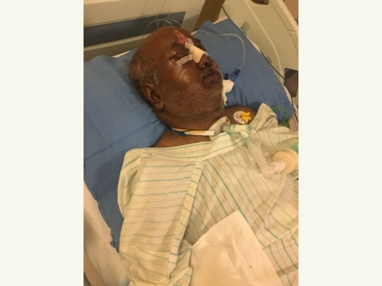 Help My Father Sandeep Jain Met With An Severe Accident