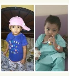 help  my son Ayaan Congenital dyserythropoietic anemia (CDA
