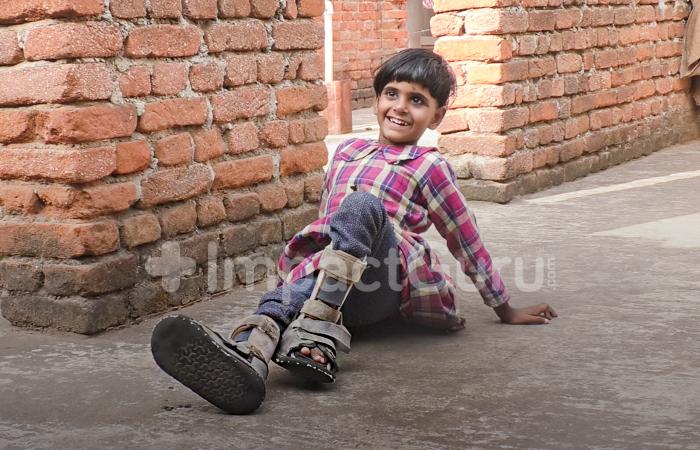Encephalopathy - a brain disease puts 4-year-old Divya's life in danger
